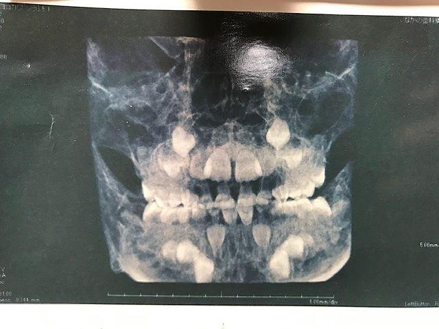永久歯が子供の歯の奥に埋まっていますが、生えるスペースはありません(T_T)