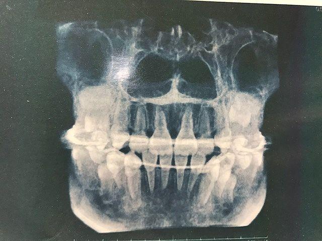 現在10歳。前歯と八重歯は綺麗に生えましたヽ(^。^)ノ